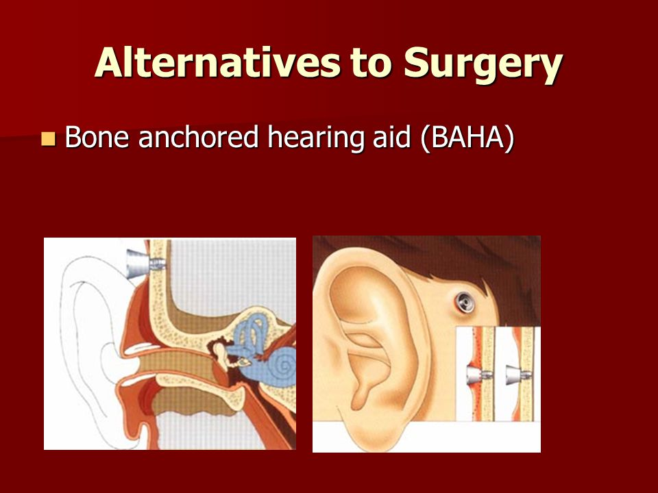 Alternatives to Surgery