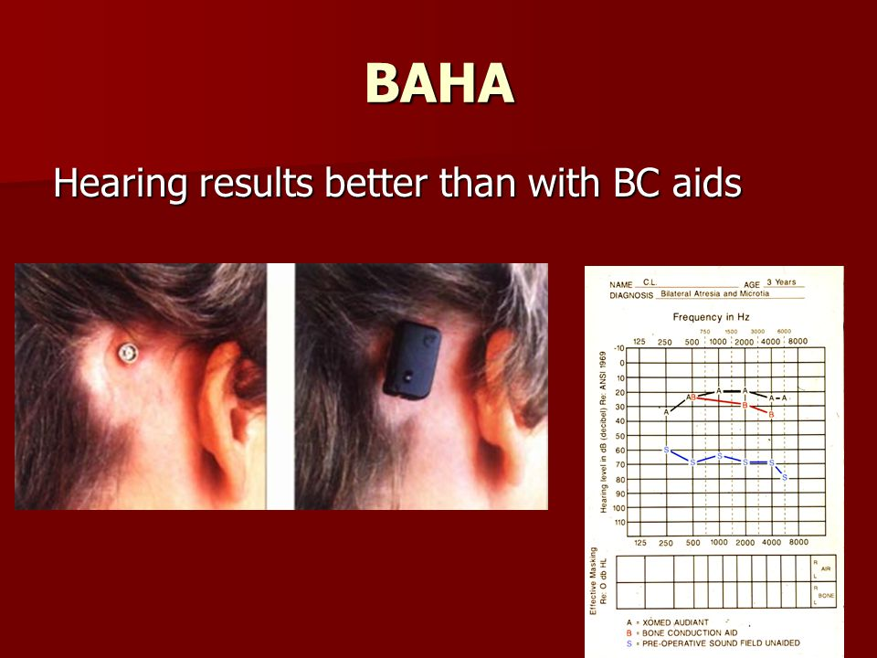 BAHA Hearing results better than with BC aids