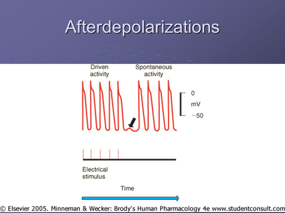 Afterdepolarizations