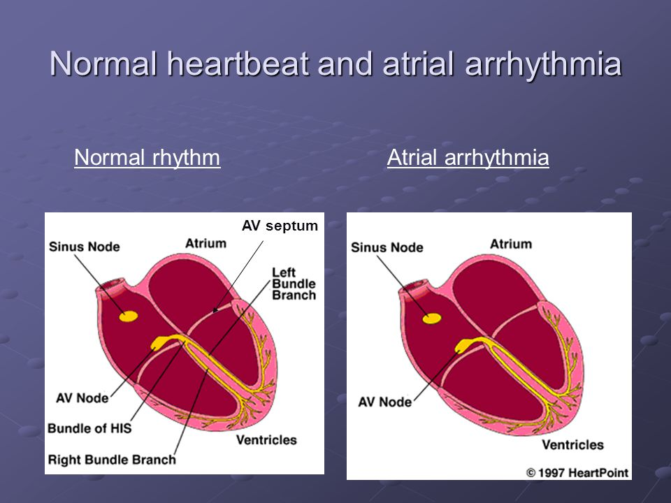Normal heartbeat and atrial arrhythmia