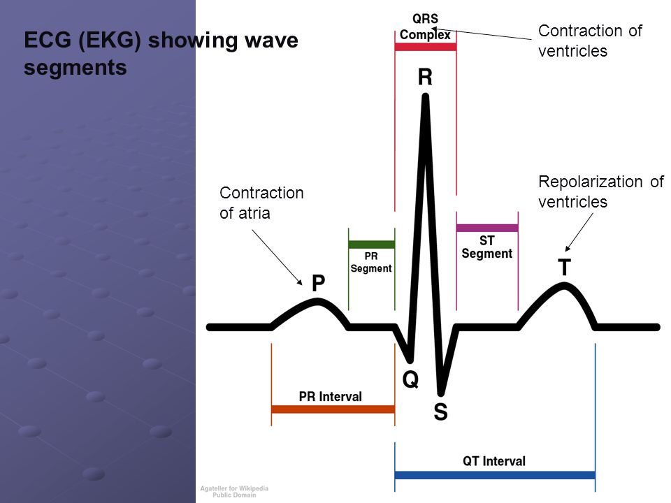 ECG (EKG) showing wave segments
