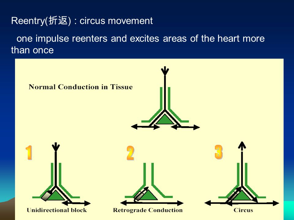 Reentry(折返) : circus movement