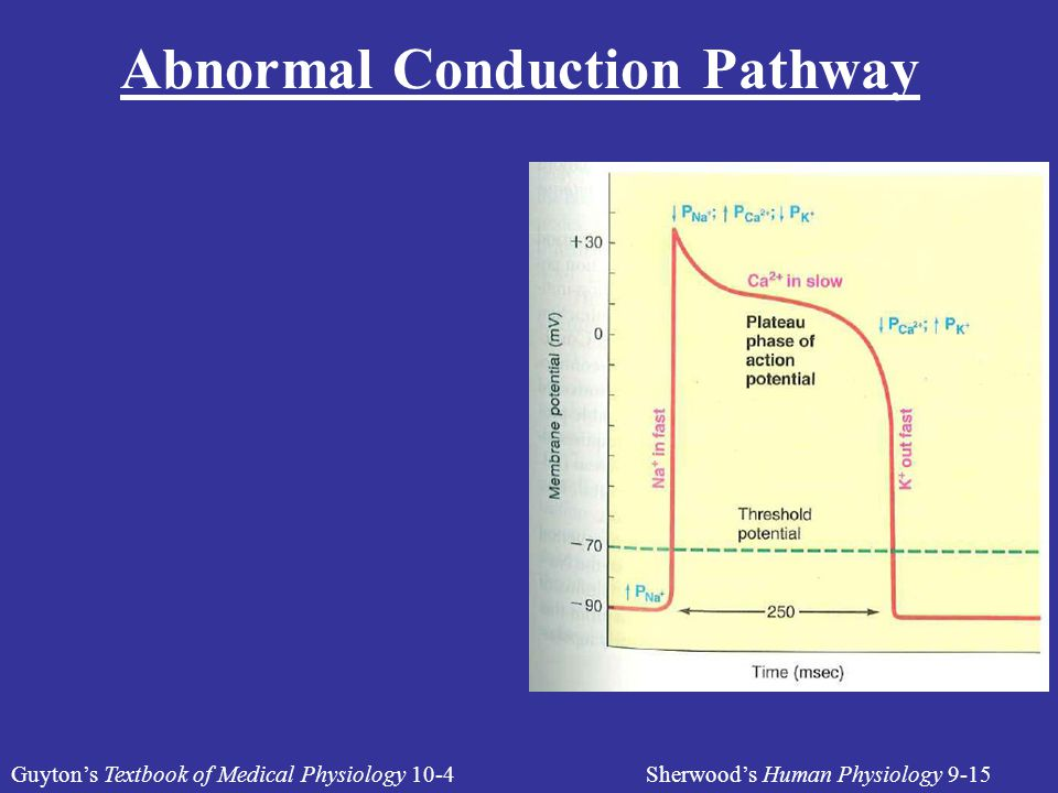 Abnormal Conduction Pathway