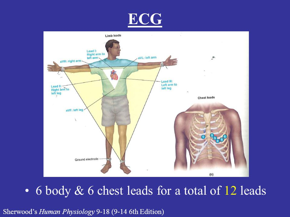 ECG 6 body & 6 chest leads for a total of 12 leads