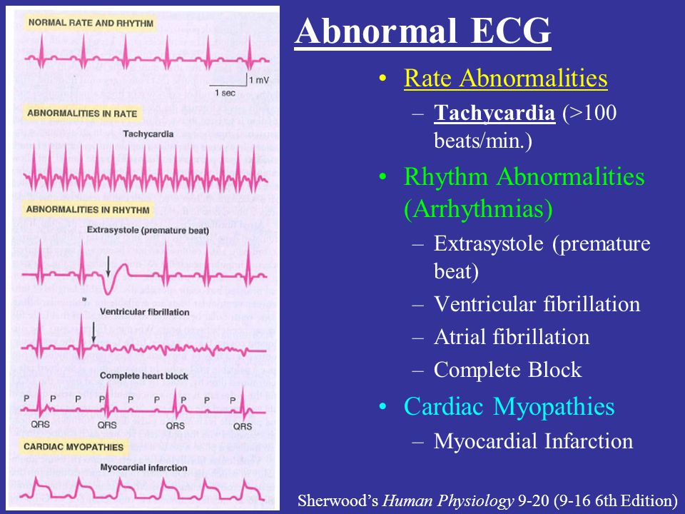 Abnormal ECG Rate Abnormalities Rhythm Abnormalities (Arrhythmias)