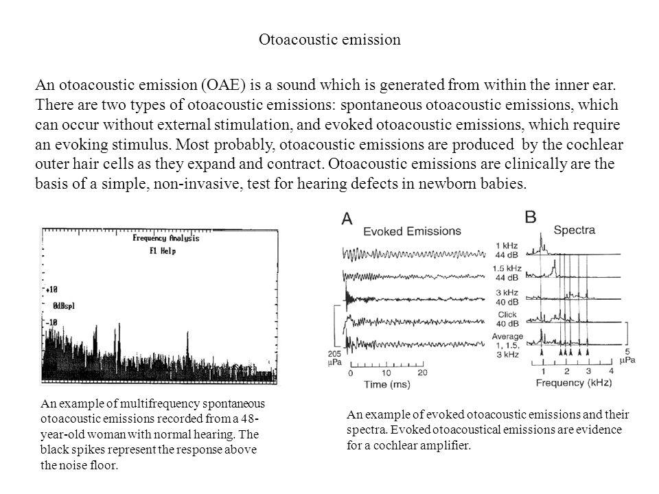 Otoacoustic emission