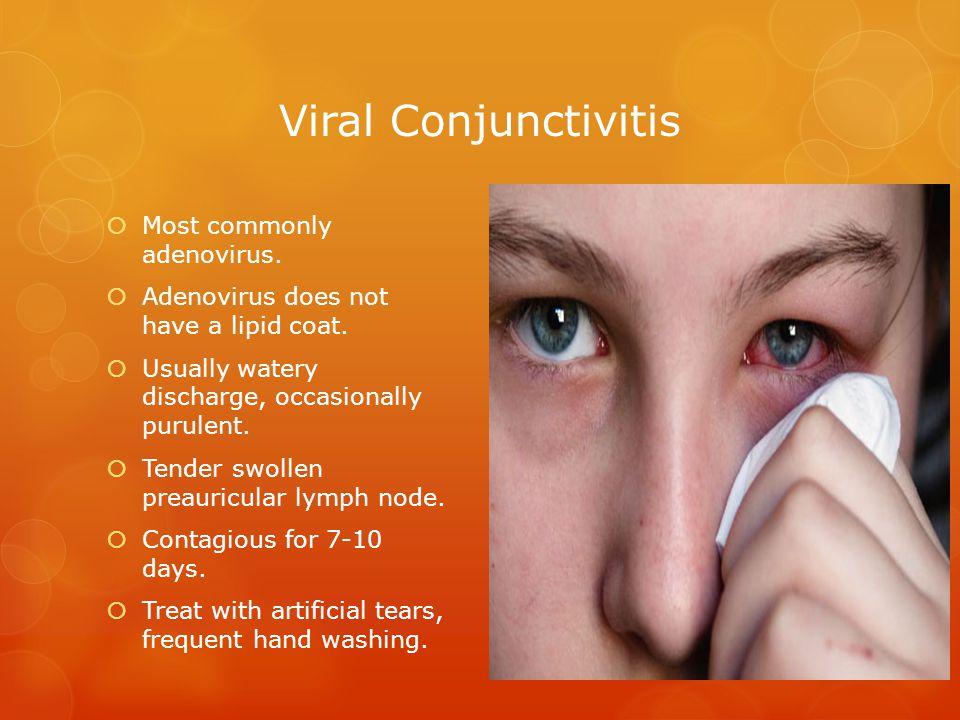 Viral Conjunctivitis Most commonly adenovirus.