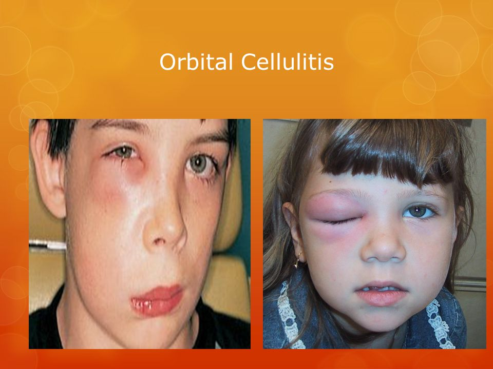 Orbital Cellulitis