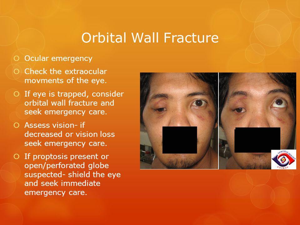 Orbital Wall Fracture Ocular emergency