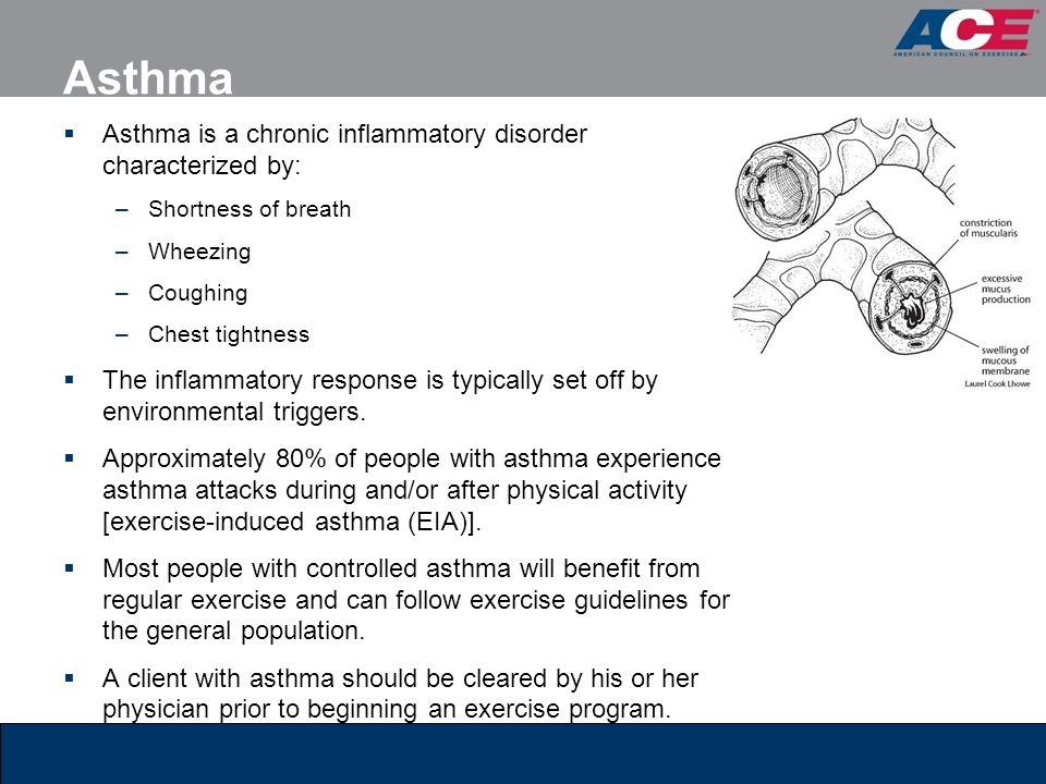 Asthma Asthma is a chronic inflammatory disorder characterized by: