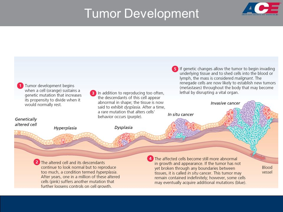 Tumor Development