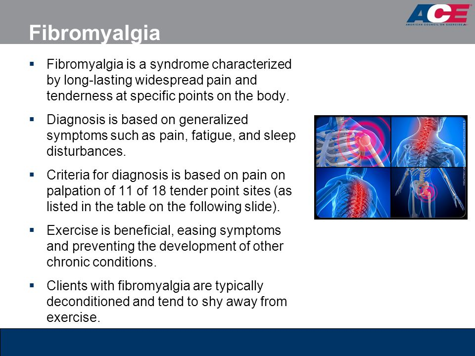 Fibromyalgia Fibromyalgia is a syndrome characterized by long-lasting widespread pain and tenderness at specific points on the body.