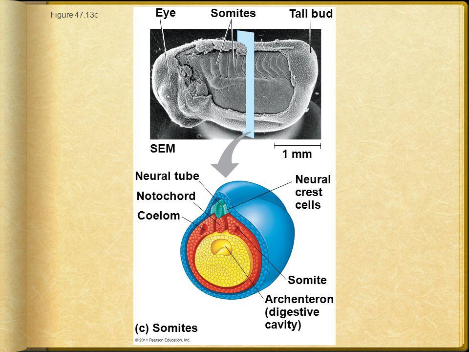 Archenteron (digestive cavity)
