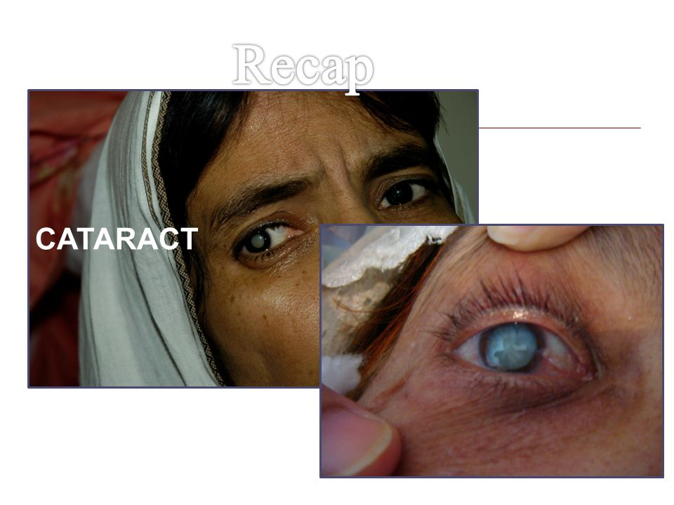 Recap CATARACT