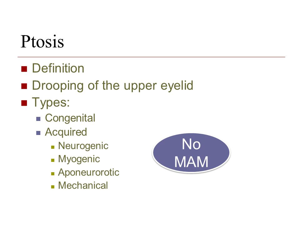 Ptosis No MAM Definition Drooping of the upper eyelid Types: