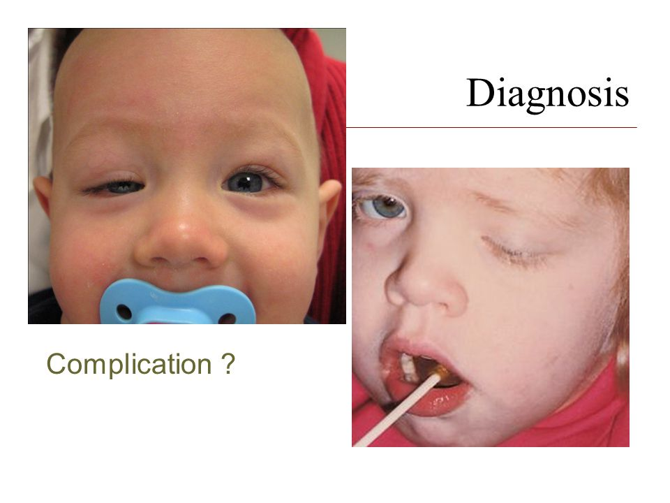 Diagnosis Complication