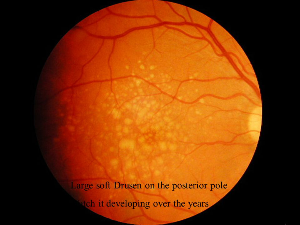Large soft Drusen on the posterior pole