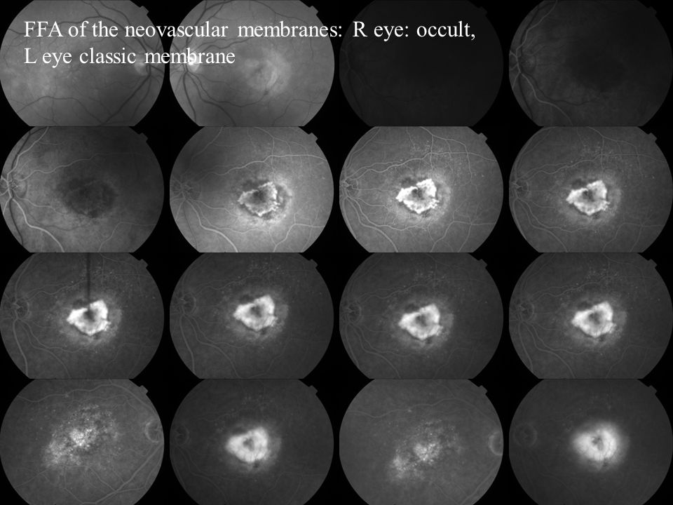 FFA of the neovascular membranes: R eye: occult, L eye classic membrane
