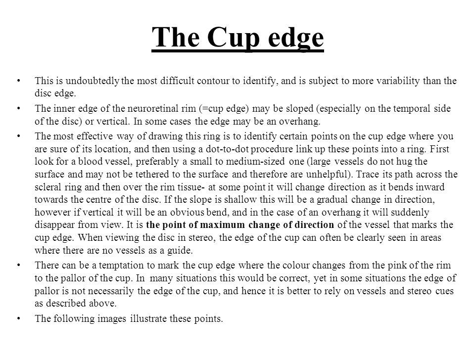 The Cup edge This is undoubtedly the most difficult contour to identify, and is subject to more variability than the disc edge.