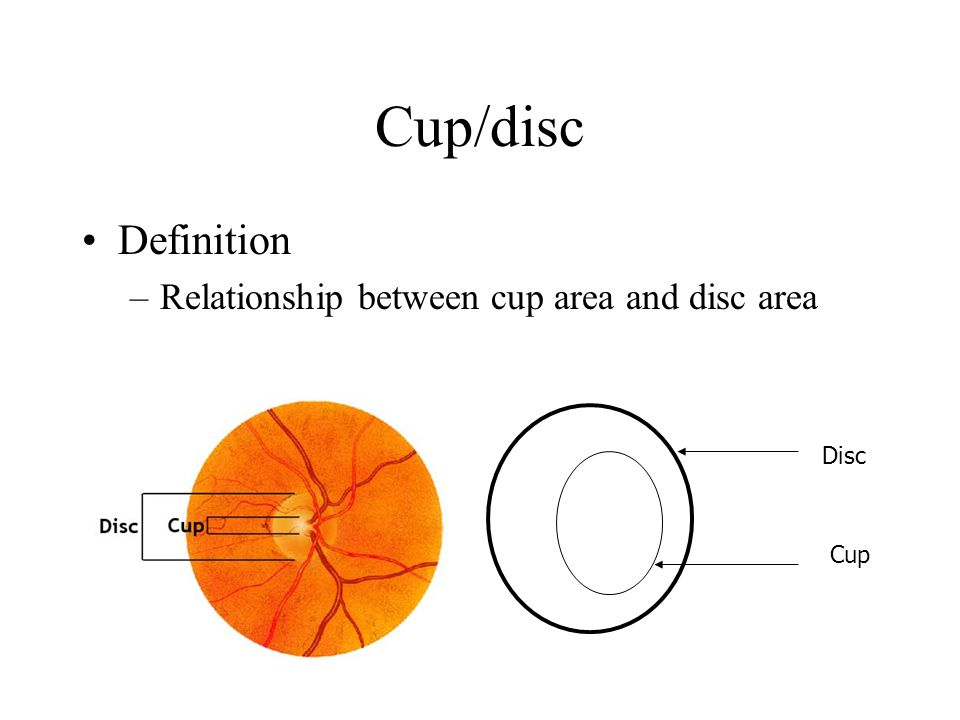 Cup/disc Definition Relationship between cup area and disc area Disc