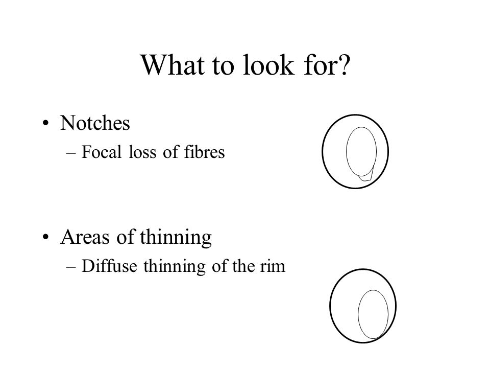 What to look for Notches Areas of thinning Focal loss of fibres