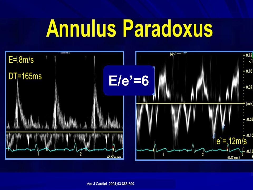 E/e'=6 Am J Cardiol 2004;93:886-890