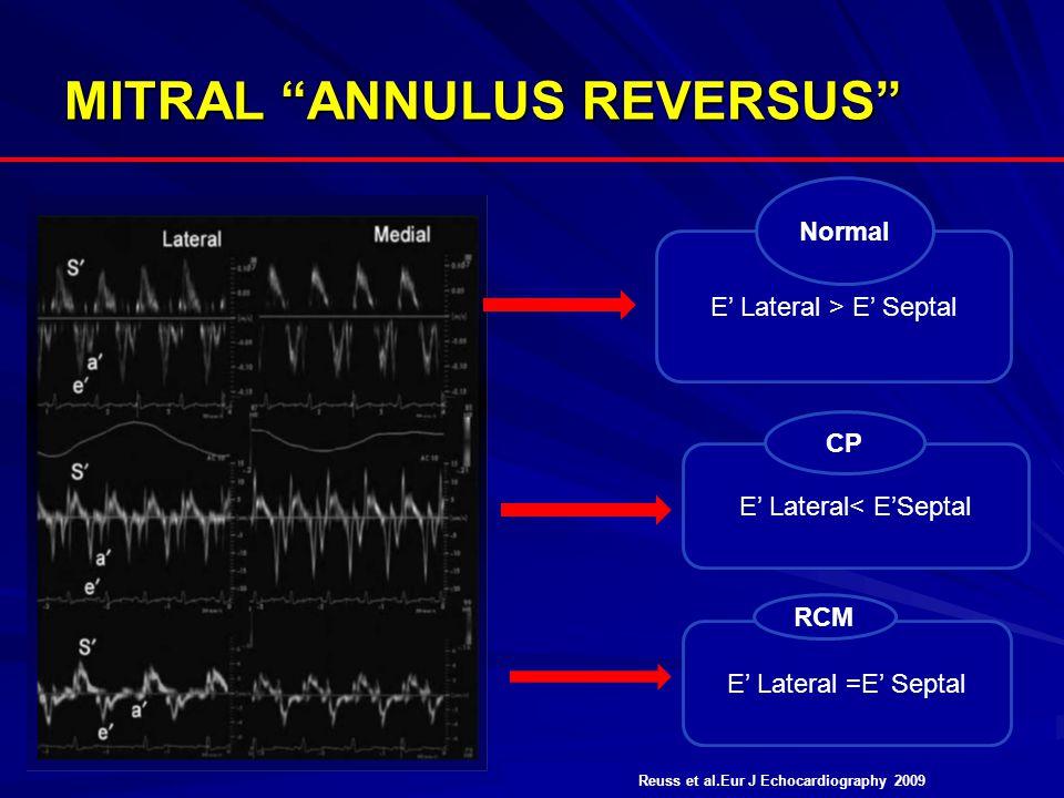 MITRAL ANNULUS REVERSUS