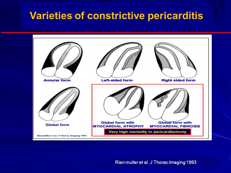 Varieties of constrictive pericarditis