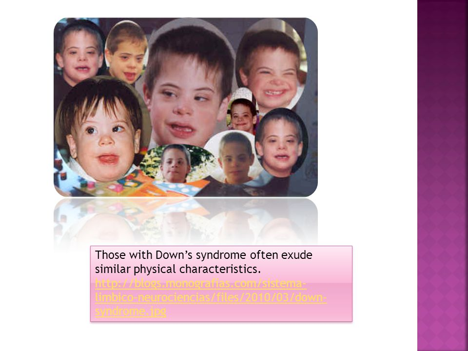 Those with Down's syndrome often exude similar physical characteristics.