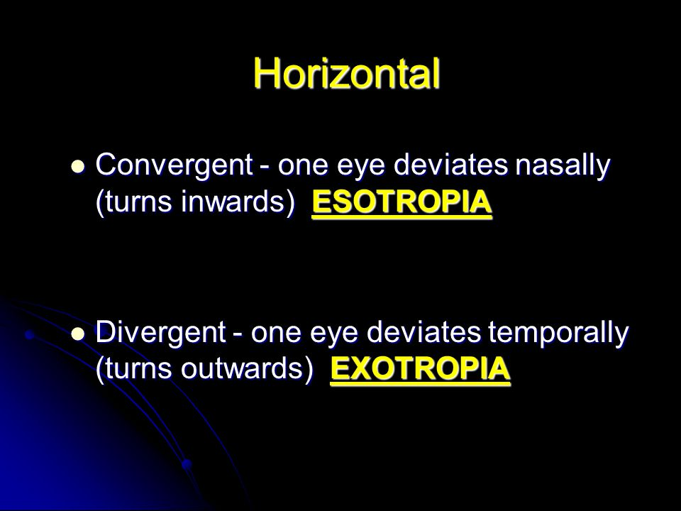 Horizontal Convergent - one eye deviates nasally (turns inwards) ESOTROPIA.