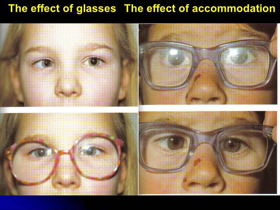 The effect of glasses The effect of accommodation