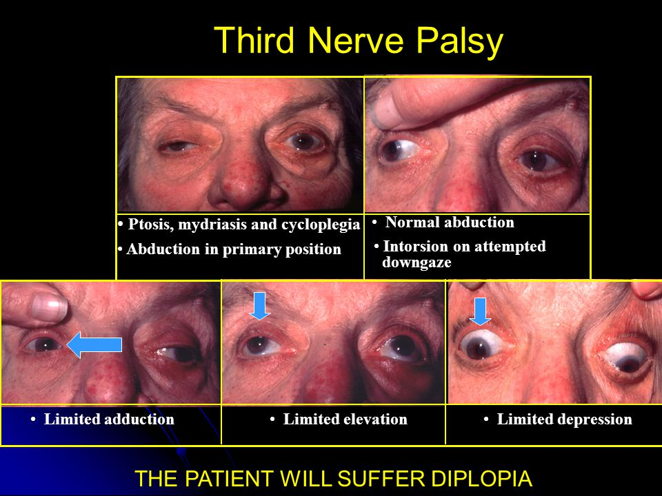 Third Nerve Palsy THE PATIENT WILL SUFFER DIPLOPIA