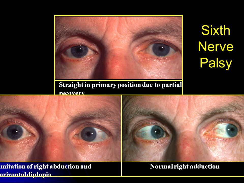 Sixth Nerve Palsy Straight in primary position due to partial recovery