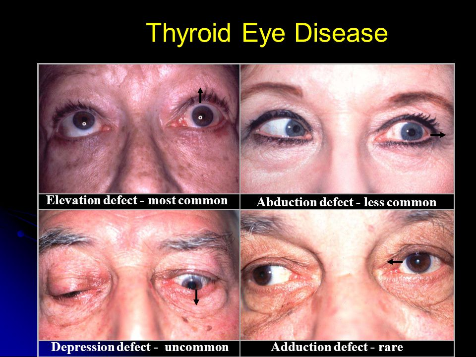 Thyroid Eye Disease Elevation defect - most common