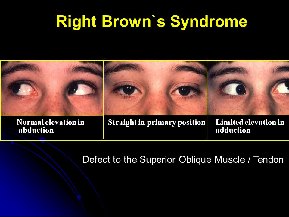 Right Brown`s Syndrome