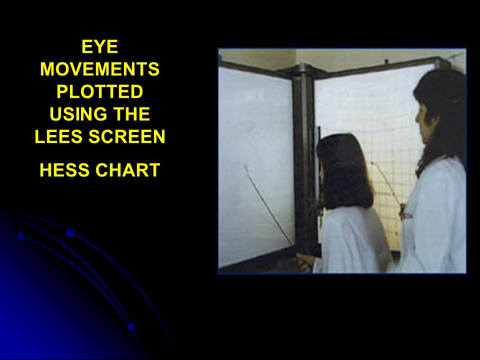 EYE MOVEMENTS PLOTTED USING THE LEES SCREEN