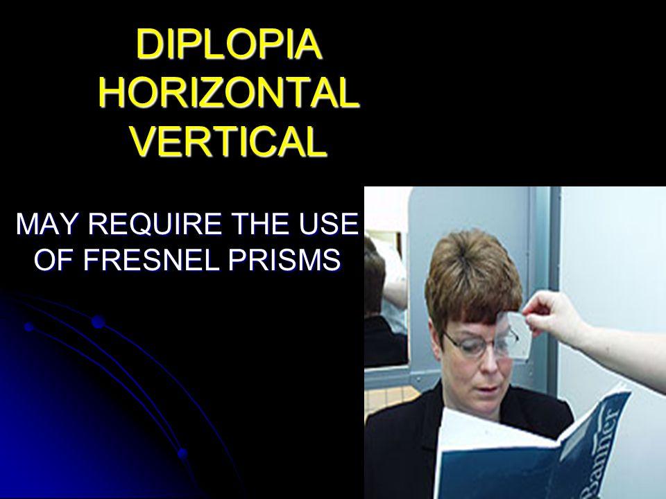 DIPLOPIA HORIZONTAL VERTICAL