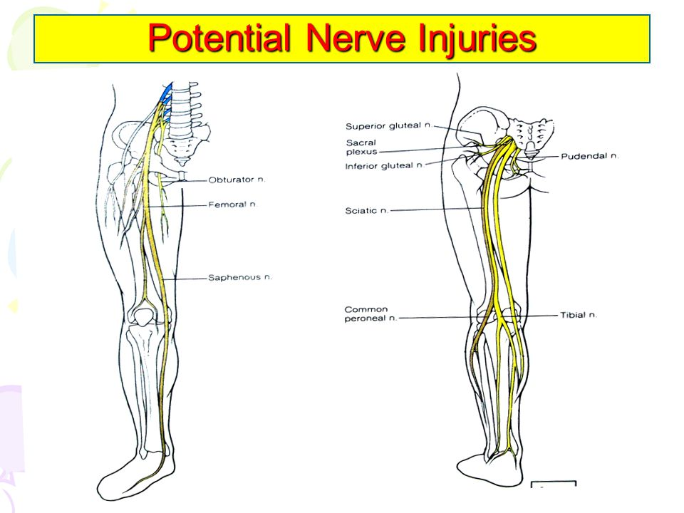 Potential Nerve Injuries