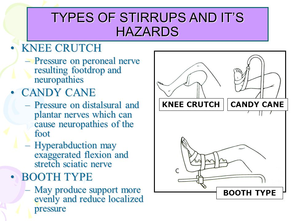 TYPES OF STIRRUPS AND IT'S HAZARDS