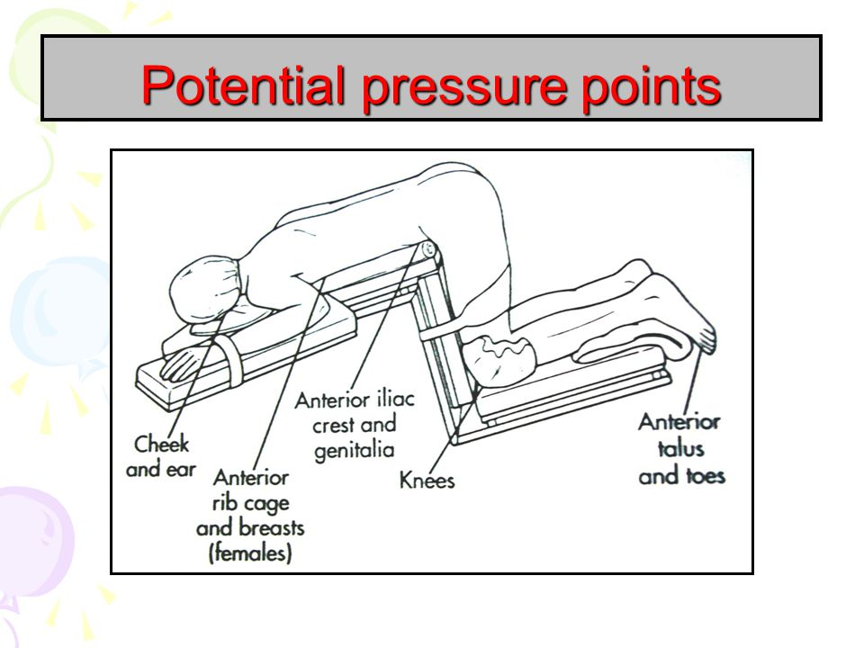 Potential pressure points