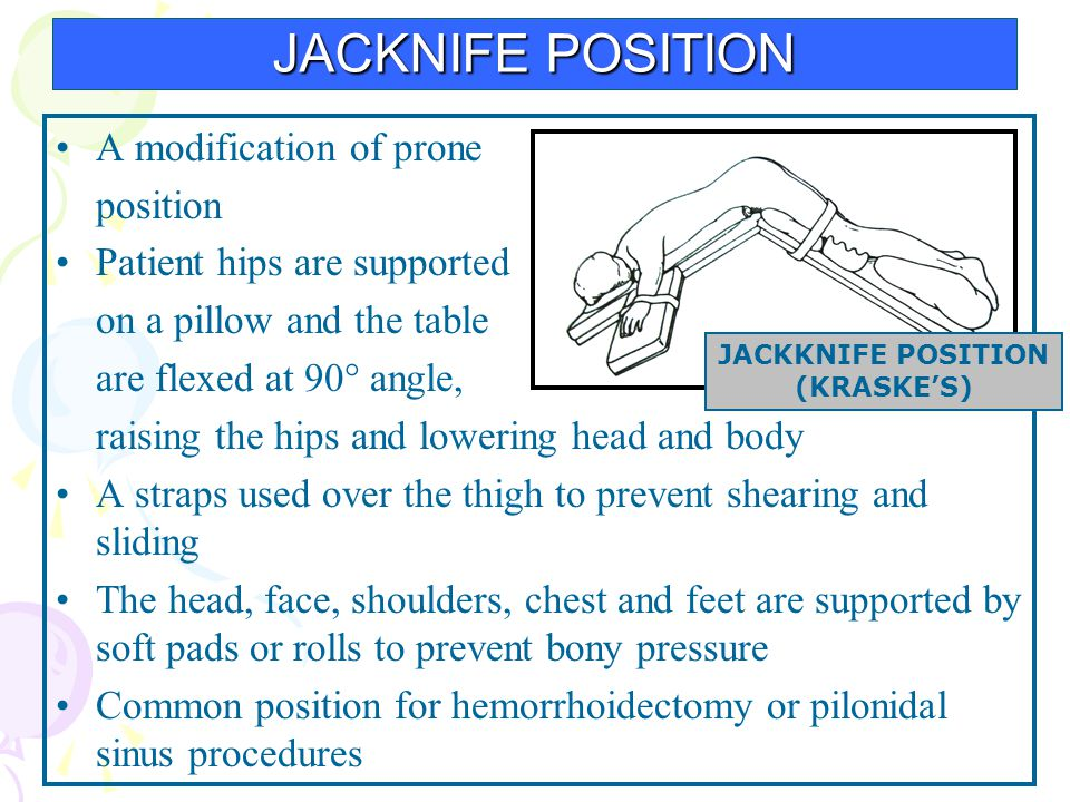 JACKNIFE POSITION A modification of prone position