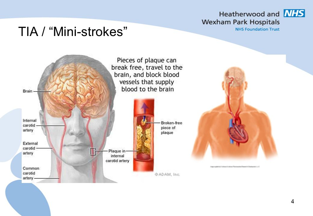TIA / Mini-strokes