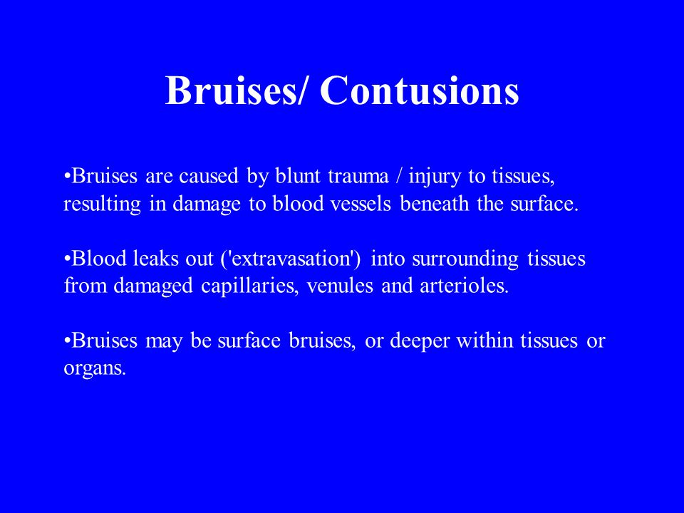 Bruises/ Contusions Bruises are caused by blunt trauma / injury to tissues, resulting in damage to blood vessels beneath the surface.