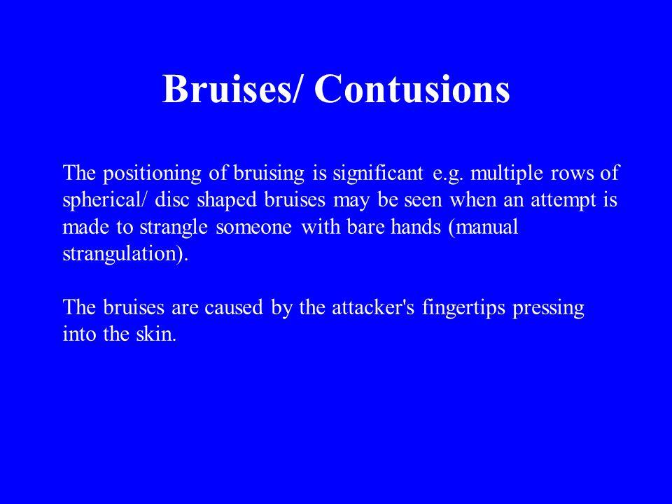 Bruises/ Contusions