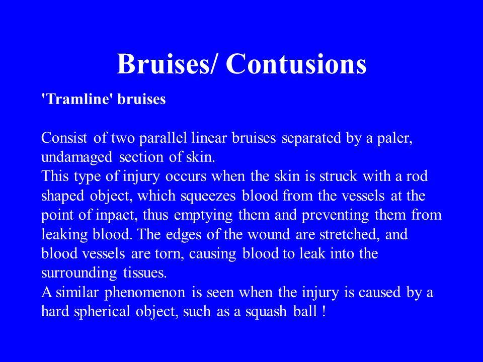 Bruises/ Contusions Tramline bruises