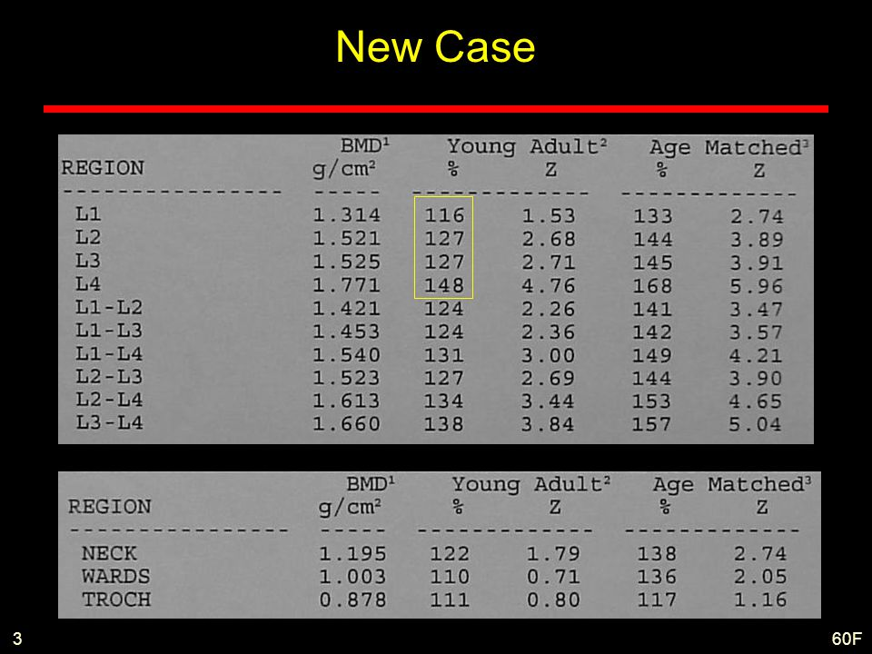 New Case 3 60F