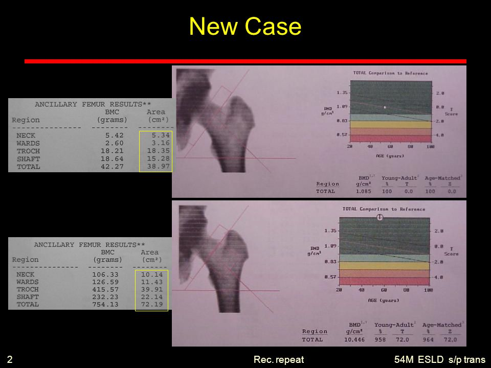 New Case 2 Rec. repeat 54M ESLD s/p trans