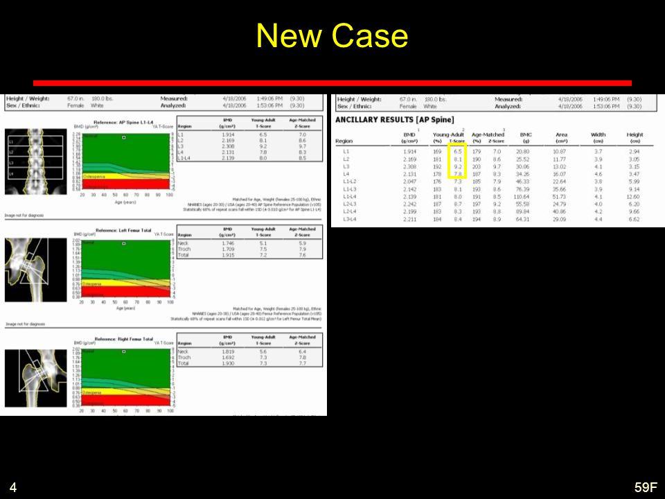 New Case 4 59F