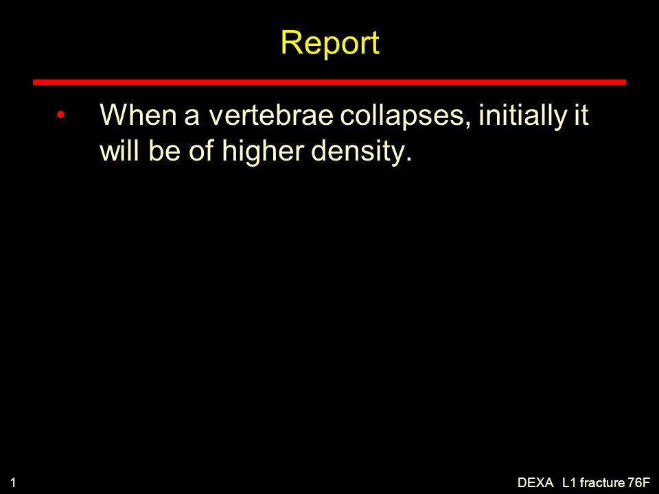 Report When a vertebrae collapses, initially it will be of higher density. 1 DEXA L1 fracture 76F