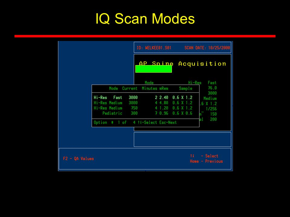 IQ Scan Modes